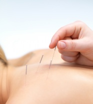 Link toAcupuncture pictures hd download